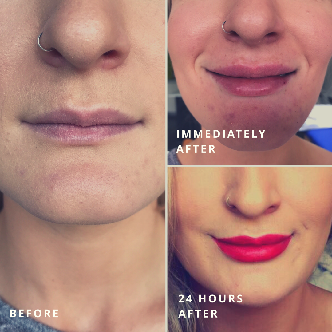 Cosmetic Injections, Botox and Dermal Filler - Earlsfield